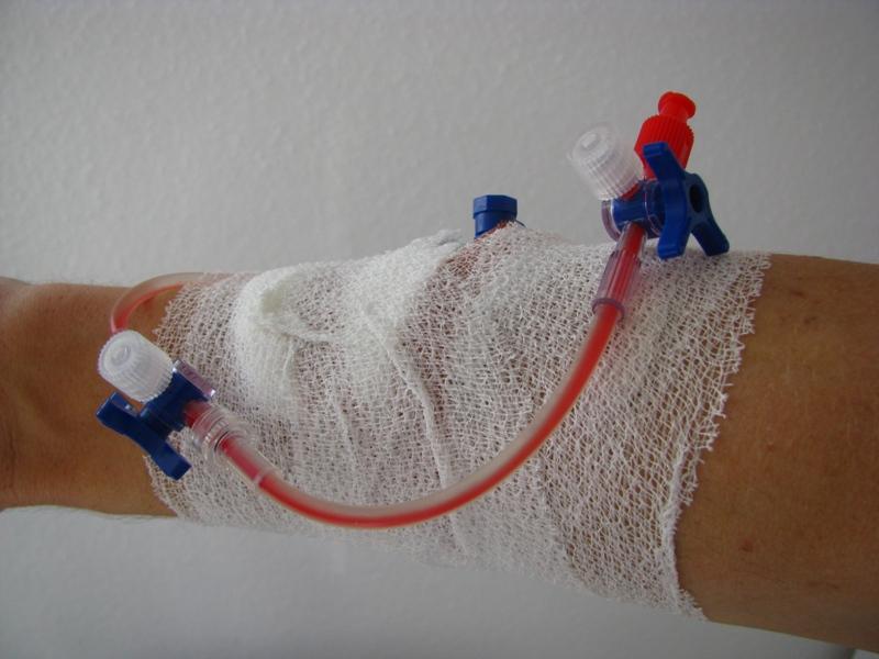 Wenflon owinięty bandażem elastycznym, do którego podłączone są dwa kraniki trójdzielne